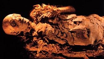 <b>Mumiyada xərçəng xəstəliyi tapıldı </b>