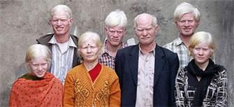 <b>Dünyanın ən geniş albinos ailəsi </b>