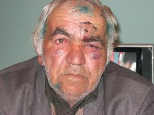 Gürcüstanda azərbaycanlı işgəncədən öldü