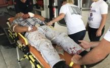Türkiyədə 7 mindən çox qəssab xəstəxanalıq oldu