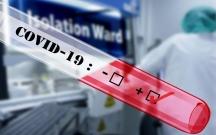 Bu şəxslərdən koronavirus testi götürülməyəcək