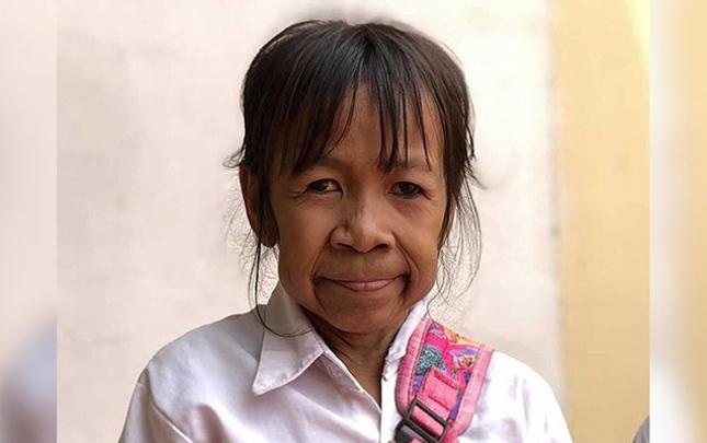 Xəstəlik 10 yaşlı qızı qoca qarıya çevirdi