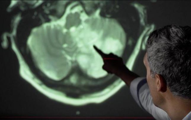 Koronavirus beyin xəstəliklərinə səbəb ola bilər