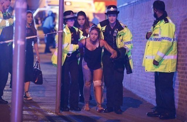 Stadiondakı teraktda 120 nəfər yaralanıb