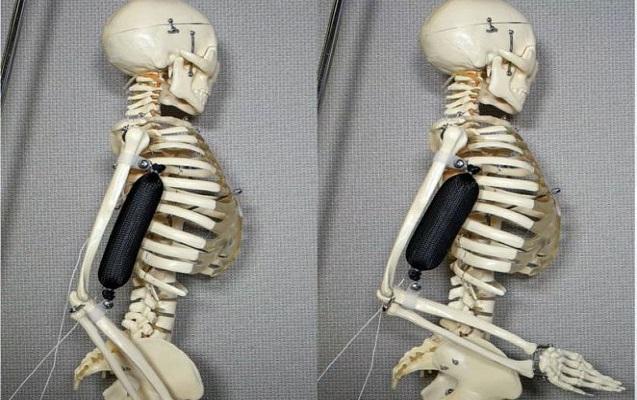 İnsan öz çəkisindən 1000 dəfə ağır yükü qaldıra biləcək