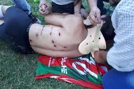 Polis futbolçuları güllələdi