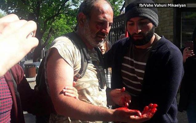 Ermənistanda aksiyaya qatılan deputat xəstəxanalıq oldu