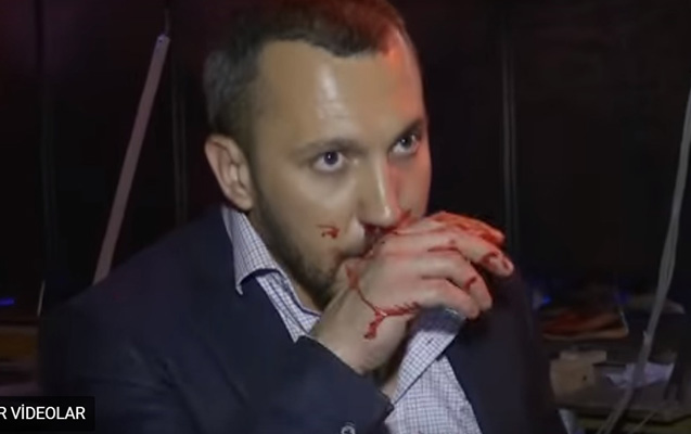Ukraynalı deputatlar efirdən sonra əlbəyaxa oldular
