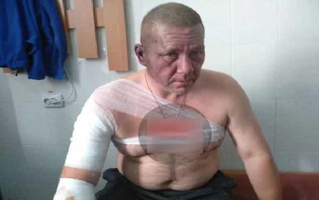 Qondarma respublikanın rəhbərliyinə namizəd yaralandı - Donetskdə partlayış ...