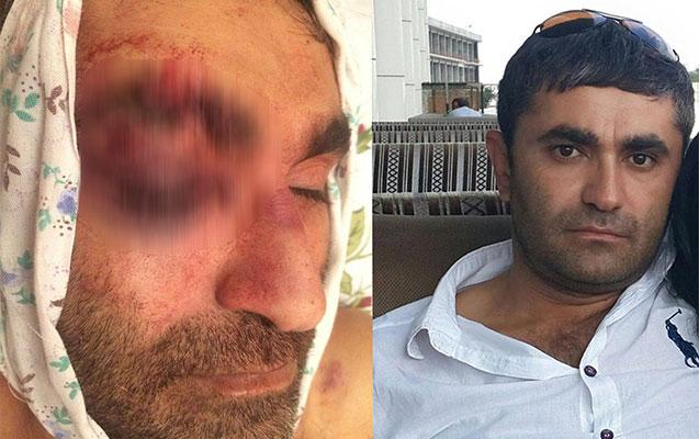 Polis idarəsindəki ölümlə bağlı daha bir videomüraciət