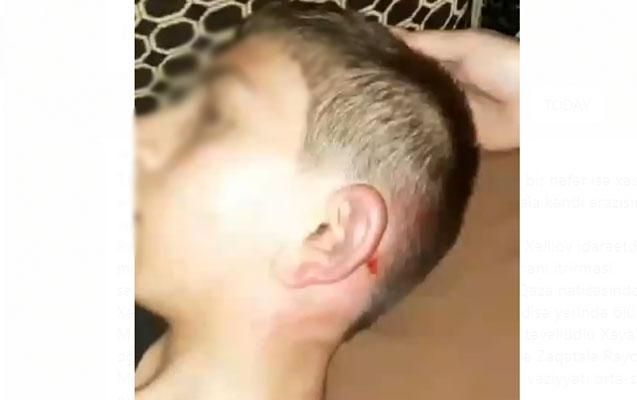 Gəncədə oğlunu döyən ata saxlanılıb, cinayət işi başlanılıb