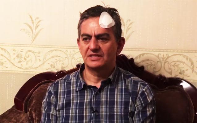 """""""Əli Kərimli polisləri yaralayıb, başını avtobusa özü vurub"""""""