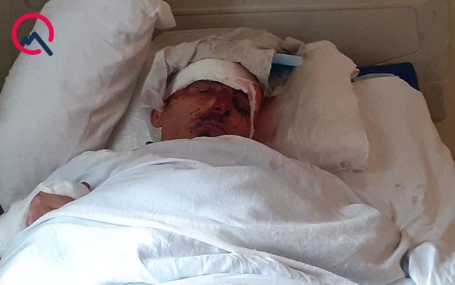 Qobustanda mikroavtobus aşdı, 2 ölü, 5 yaralı