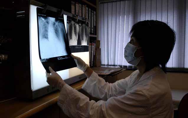Çində 44 nəfər naməlum pnevmoniyaya yoluxub