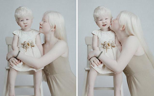 Model dünyasını fəth edən albinos bacılar