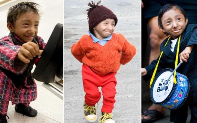 Dünyanın ən kiçik adamı vəfat etdi