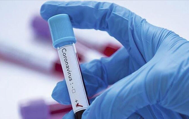 Ölkədə 25 mindən artıq koronavirus testi edilib
