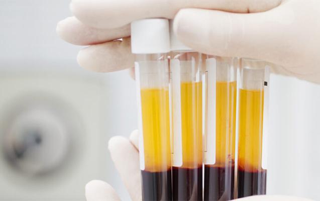 Rusiyada koronavirusun yeni metodla müalicəsinə başlanıldı