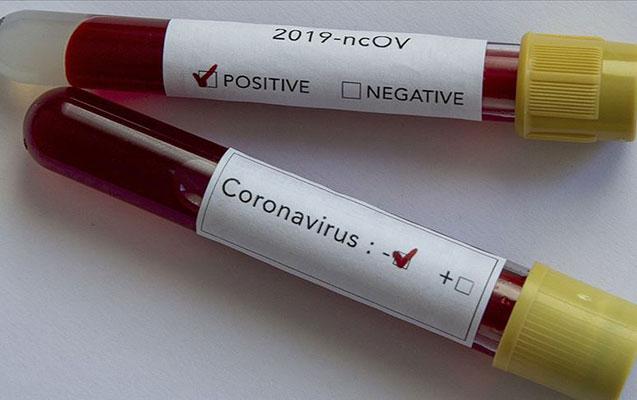 Azərbaycanda daha 30 nəfərdə koronavirus aşkarlandı - 41-i sağaldı