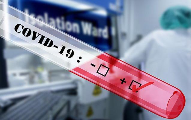 Koronavirus testi bu hallarda yanlış göstərə bilər
