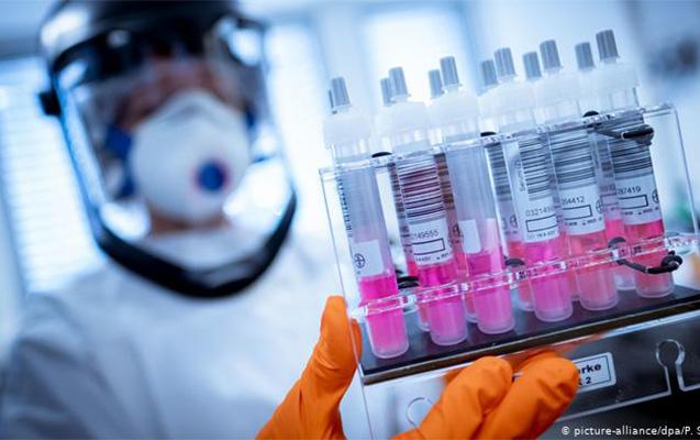 Moskvada son sutkada 68 nəfər koronavirusdan öldü