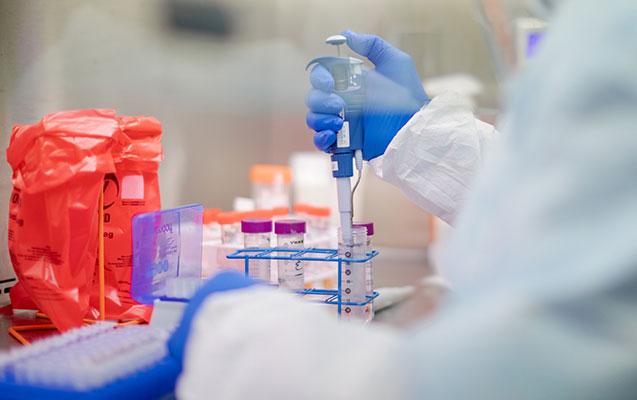 Azərbaycanda daha 168 nəfər koronavirusa yoluxdu - 5 nəfər öldü