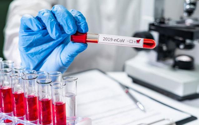 Daha 323 nəfərdə koronavirus aşkarlandı - 5 nəfər vəfat etdi