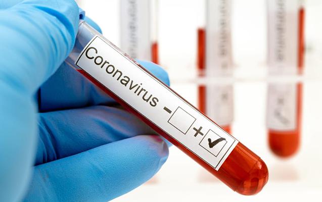 Azərbaycanda prokuror koronavirusa yoluxdu
