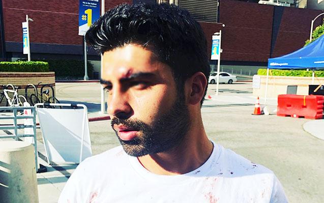 ABŞ-da ermənilər azərbaycanlılara hücum etdi - Fotolar