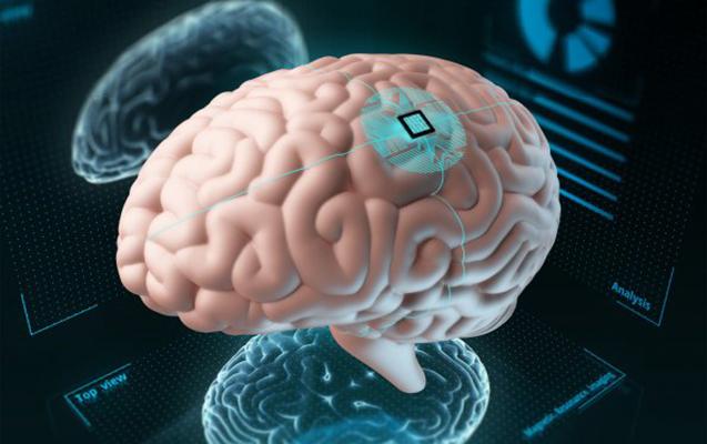 Rusiyada insan beyninə çip yerləşdirəcək proqram hazırlanır